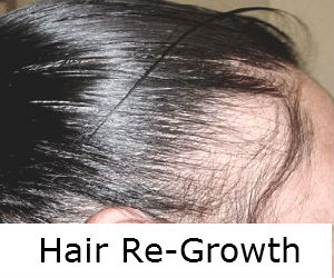 Best Hair Loss Treatment Men and Women Rocklin Sacramento & Roseville Area
