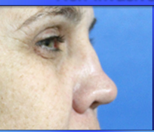 Before & After Best Non-Surgical Nose Job At Elite Medical Aesthetics, Rocklin