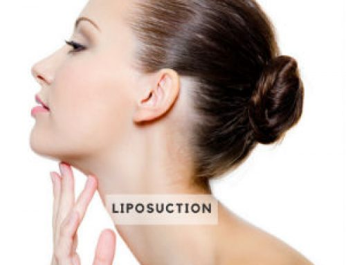 Liposuction or Kybella?