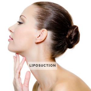 Chin Neck Liposuction Elite Medical Aesthetics Sacramento California