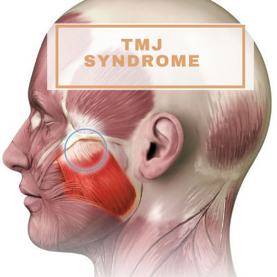 ELite Medical Aesthetics Botox TMJ Syndrome jp