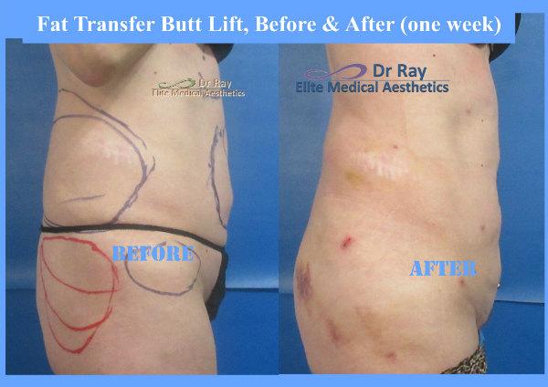 Fat Transfer Butt Lift Vaser Elite Medical Rocklin by Dr Ray Bayati