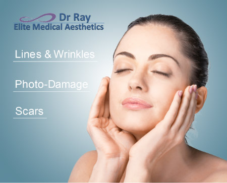 Fraxel laser Elite Medical Aesthetics Rocklin Ray Bayati MD sacramento