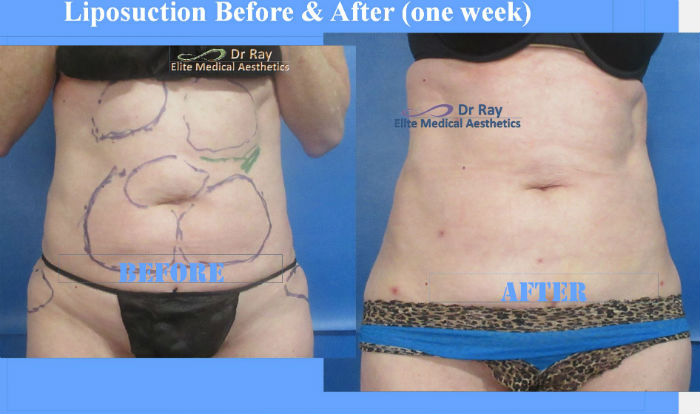 Liposuction Abdomen Before & After Elite Medical Aesthetics Rocklin California 2 s