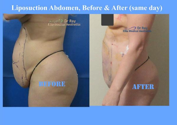 Abdominal Liposuction Body Contouring in Rocklin