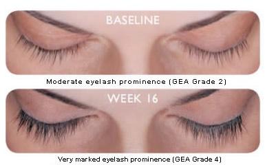 Latisse grow eyelashes treatments in Sacramento area Elite Medical Aesthetics Rocklin before after