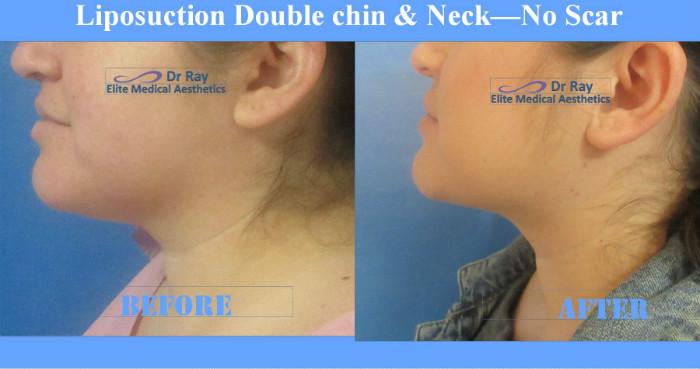 liposuction Double Chin No Scar Rocklin Sacramento Elite Medical Before & After 2