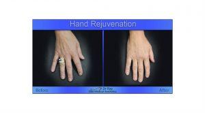 hands radiesse filler injection Elite Medical Sacramento area Granite bay
