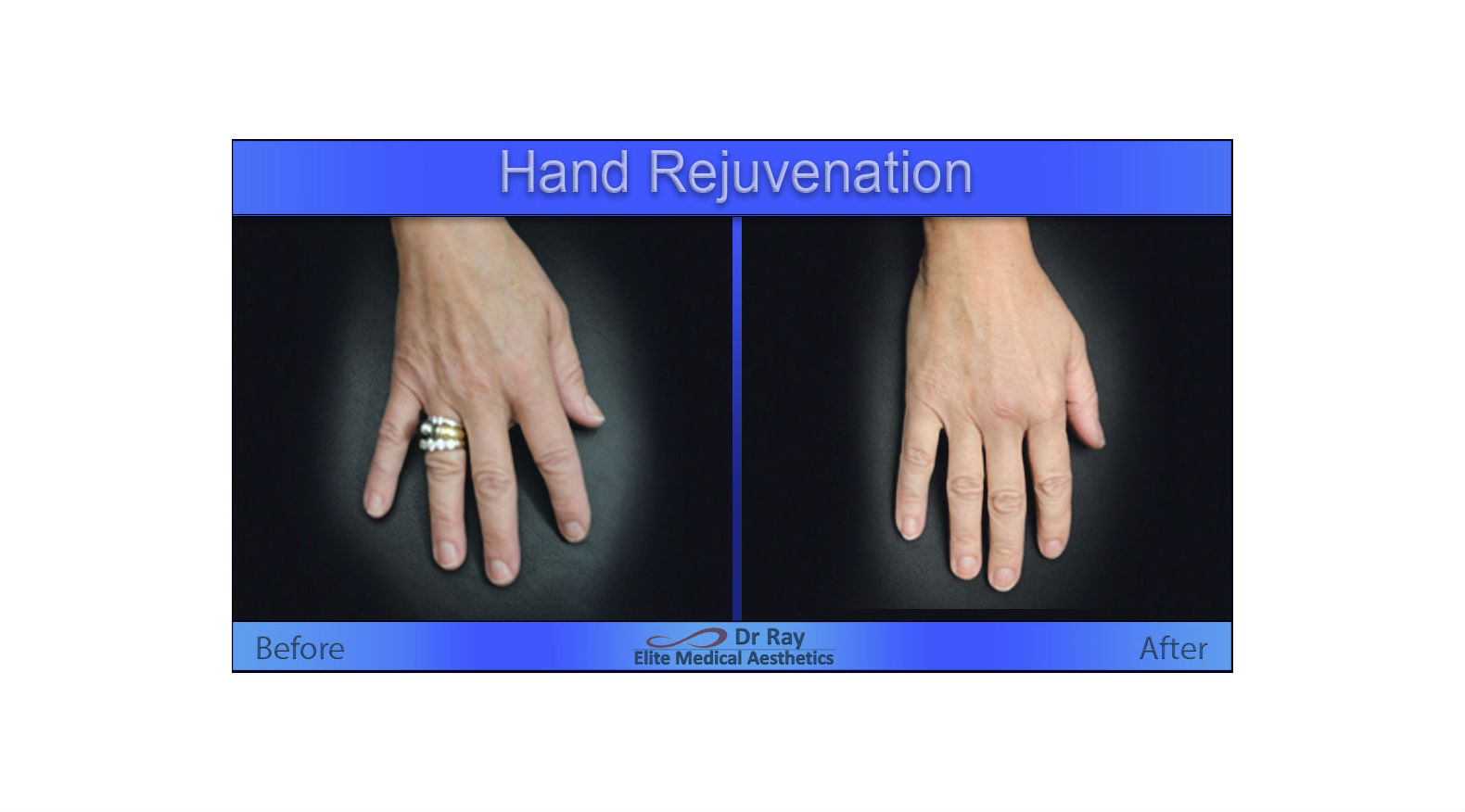 Best Hand rejuvenation in Sacramento and walnut creek area