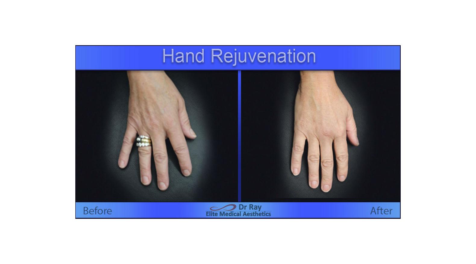 Best Hand rejuvenation in Sacramento and walnut creek area