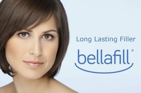 Bellafill Rocklin Permanent filler Elite Medical