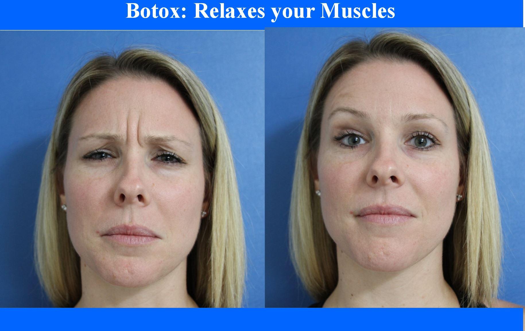 Botox Elite Medical Rocklin