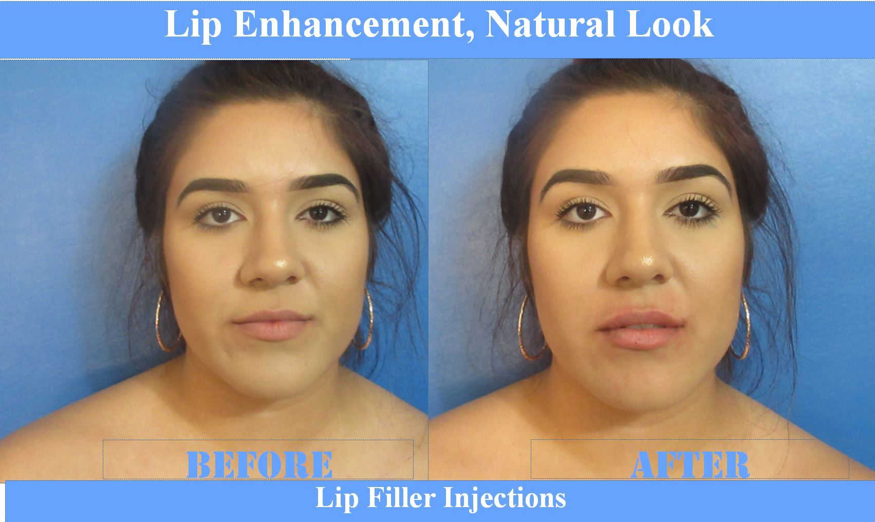 Lips Before & After Elite MEdical Rocklin 7