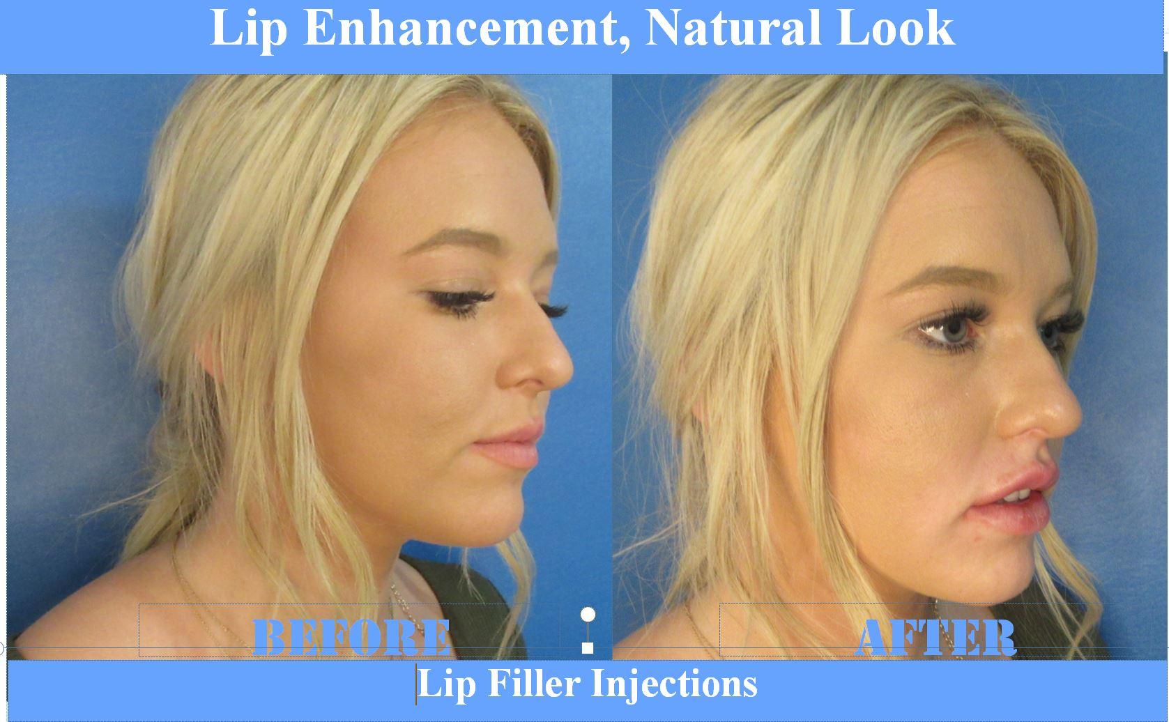 Lips Before & After Elite MEdical Rocklin3