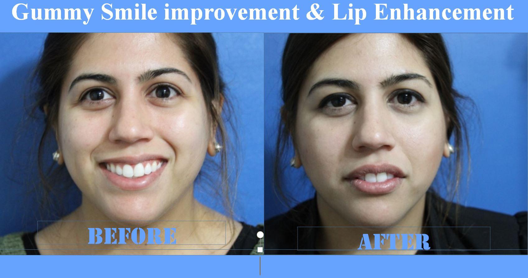 Lips Before & After Elite MEdical Rocklin