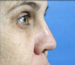 icon Non-invasive Rhynoplasty Nose Job Elite Medical Aesthetics Sacramento Dr Ray Bayati