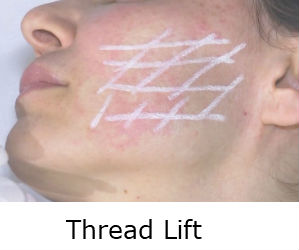Thread Lift Dr Ray @ Elite Medical Aesthetics ROcklin