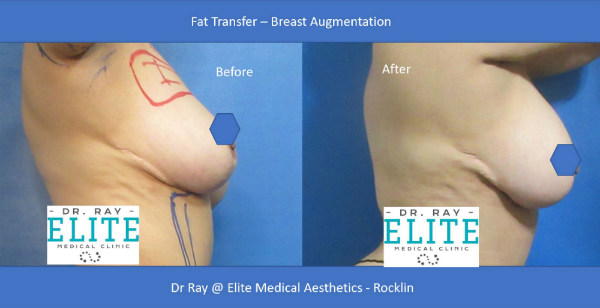 Fat Transfer Before After Elite Medical Aesthetics Rocklin Breast Augmentation s