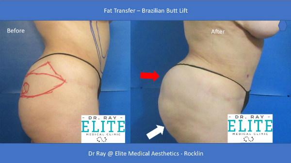 Fat Transfer Before After Elite Medical Aesthetics Rocklin Butt Lift s
