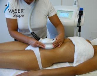 non-invasive liposuction Vaser Shape in Rocklin,