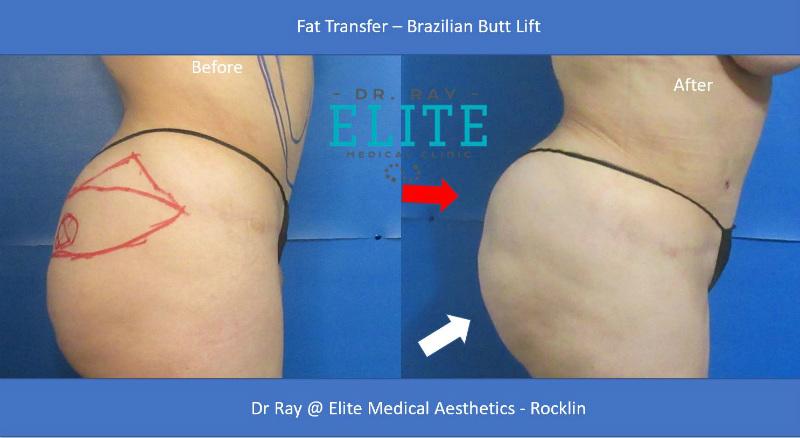 Butt Lift Before & After ELite MEdical Aesthetics Rocklin