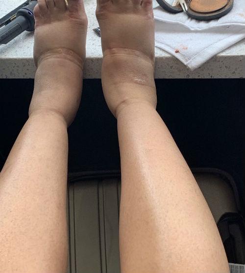 leg edema post liposuction