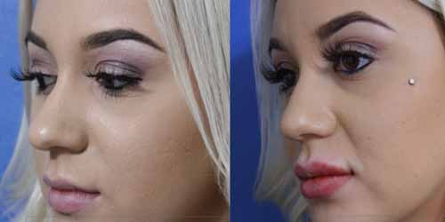 Best Lip Augmentation Filler injection in Sacramento