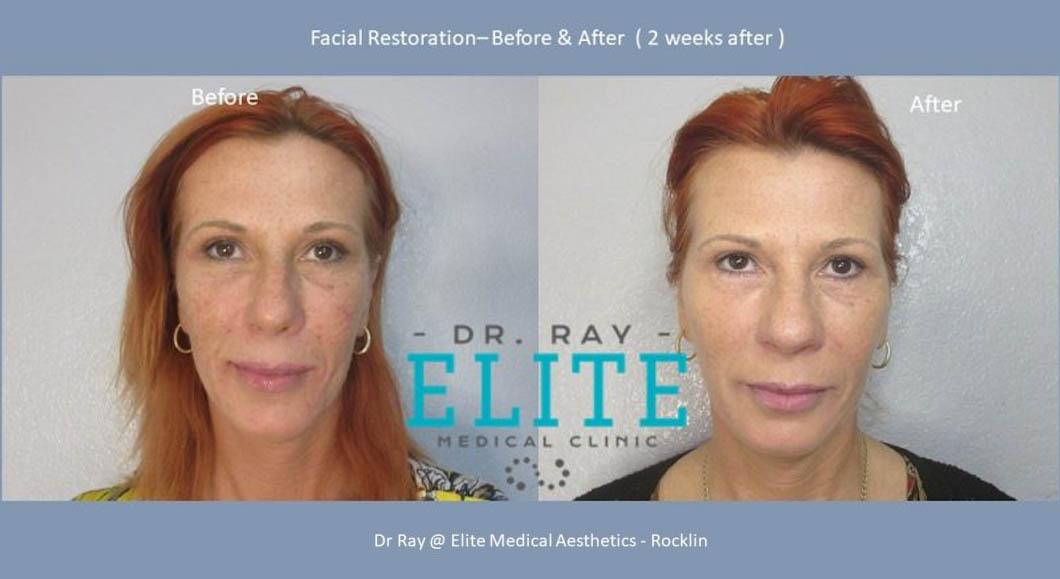 Facial-restorations-Dr-Ray-Elite-Medical-Aesthetics-Rocklin