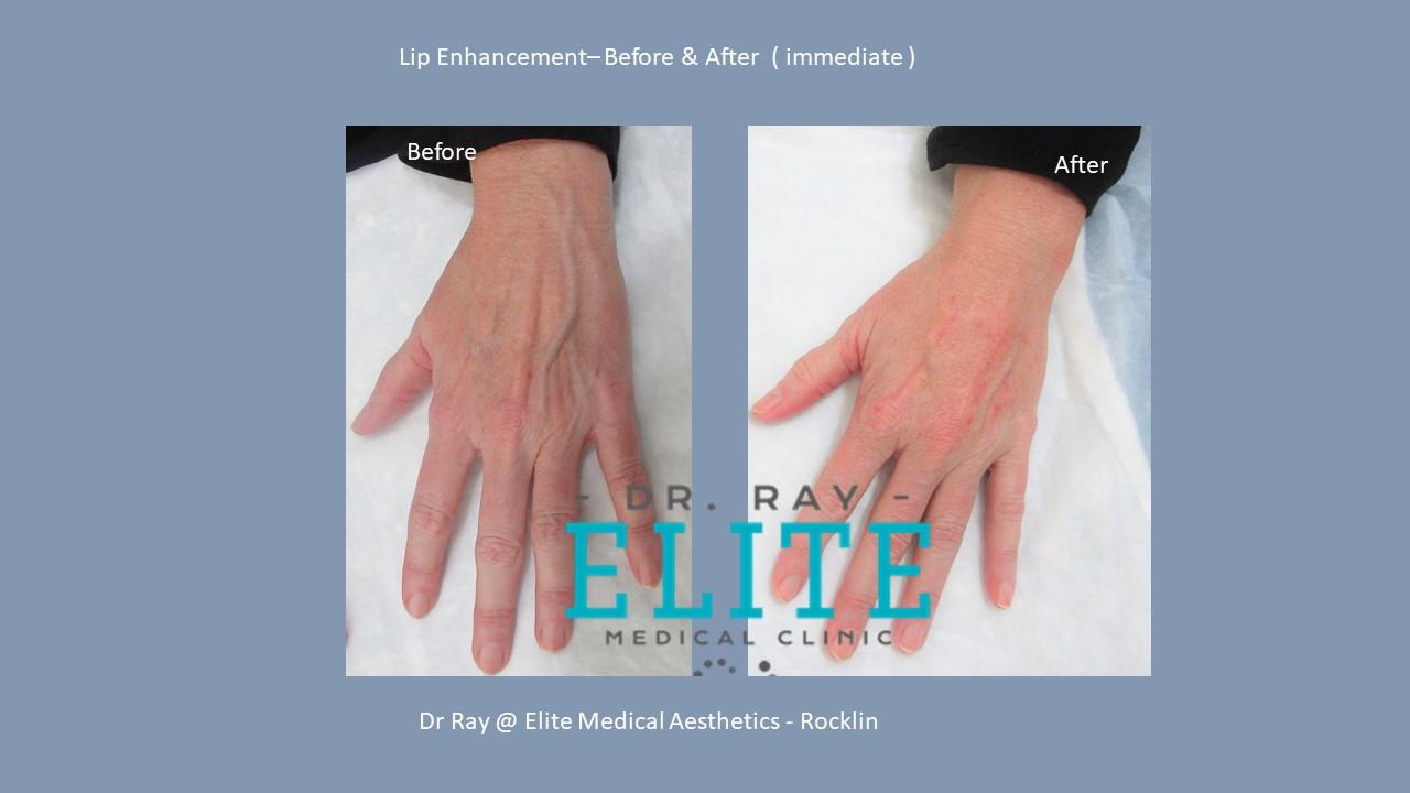 Best Hand rejuvenation in Sacraemnto
