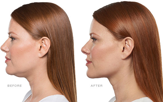 Kybella Before & After Elite Medical Aesthetics Rocklin