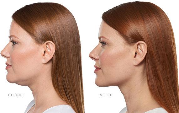Kybella Before & After Elite Medical Aesthetics Rocklin