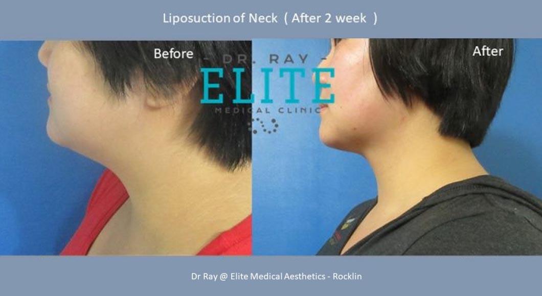 Double Chin-Neck-Dr-Ray-Elite-Medical-Aesthetics-Rocklin-Sacramento