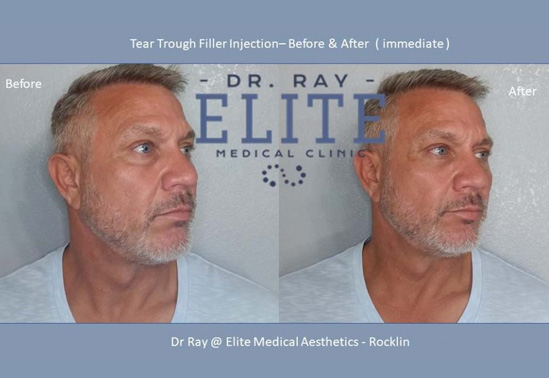 Before & After under Eyes Filler Men cosmetics treatment