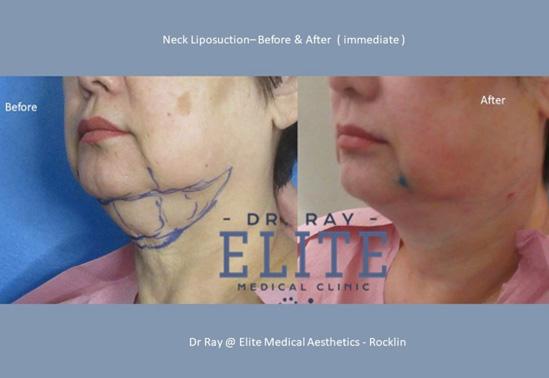 Double_Neck-Dr-Ray-Elite-Medical-Aesthetics-Rocklin-Sacramento