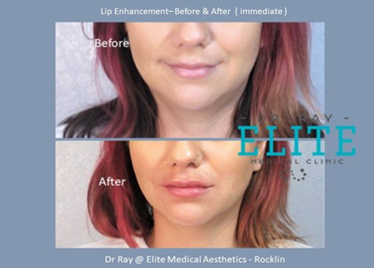 Lip Augmentation filler injection in Rocklin Dr Ray