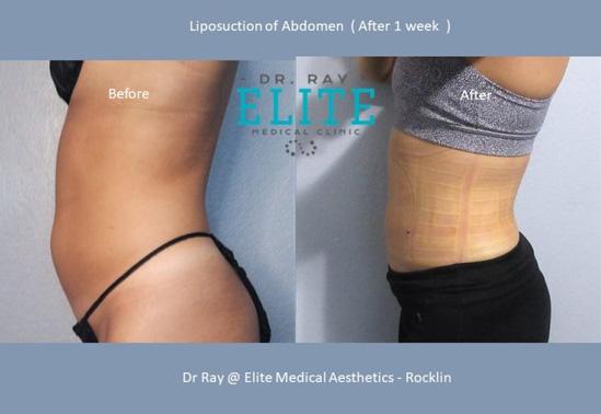 Liposculpture-_Fat Transfer-Dr-Ray-Elite-Medical-Aesthetics-Rocklin