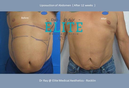 Liposculpture_Fat Transfer-Dr-Ray-Elite-Medical-Aesthetics-Rocklin