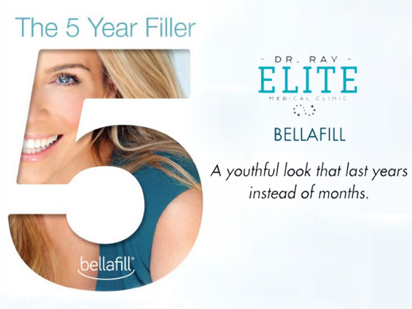 Bellafill Specials Free consultation by Dr Ray at Elite Medical Aesthetics Rocklin