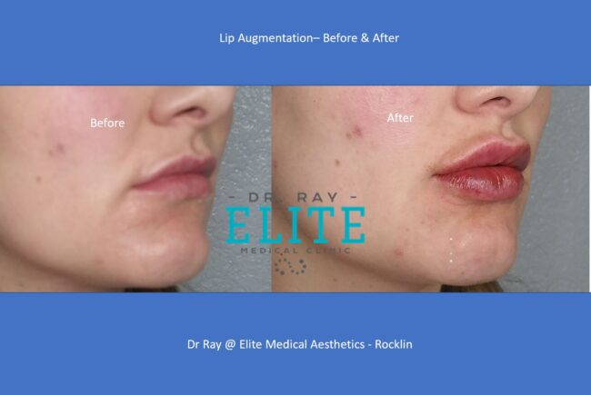 Beautiful lip enhancement, Lip injections in Sacramento
