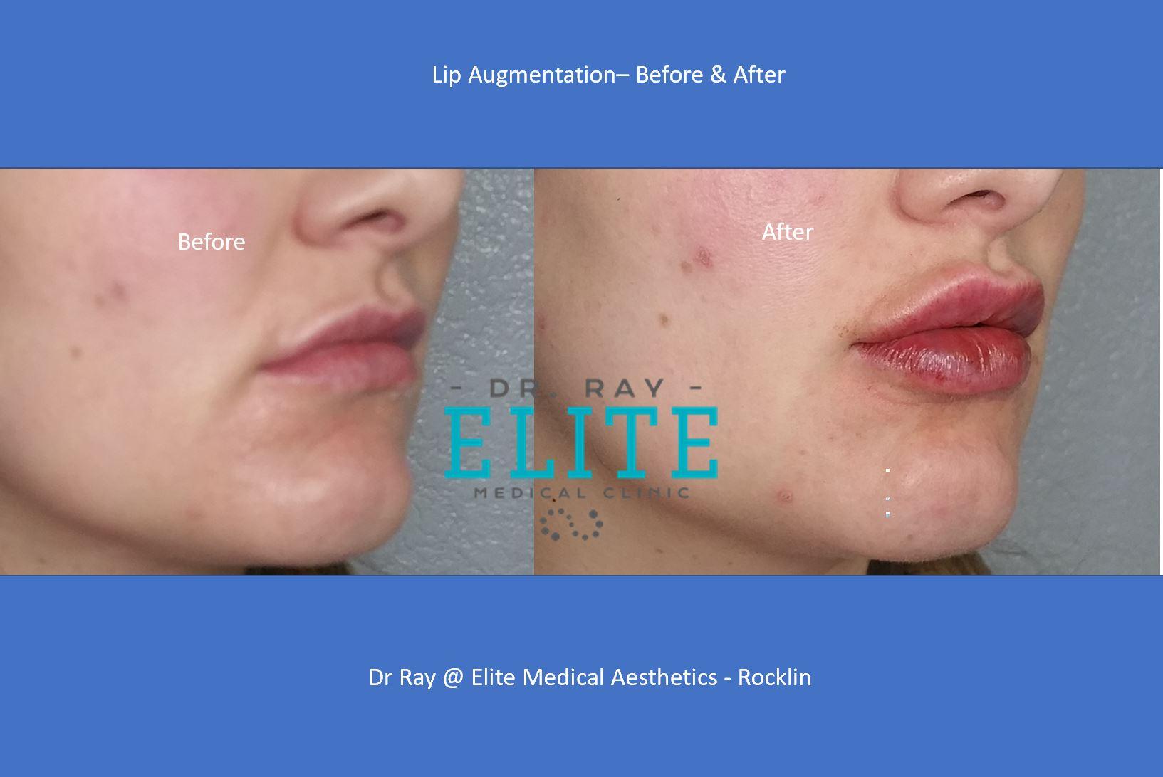 Lips-Before-After-Elite-MEdical-Rocklin