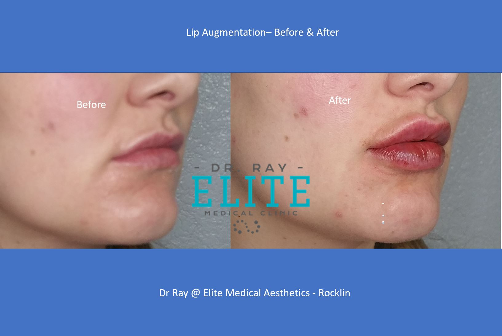 Lip Filler Injection Specials $450
