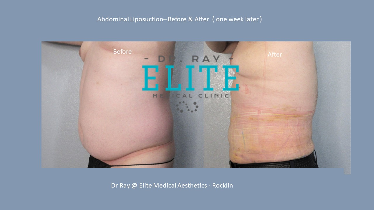 Abdominal Liposuction Before & after Side view T H