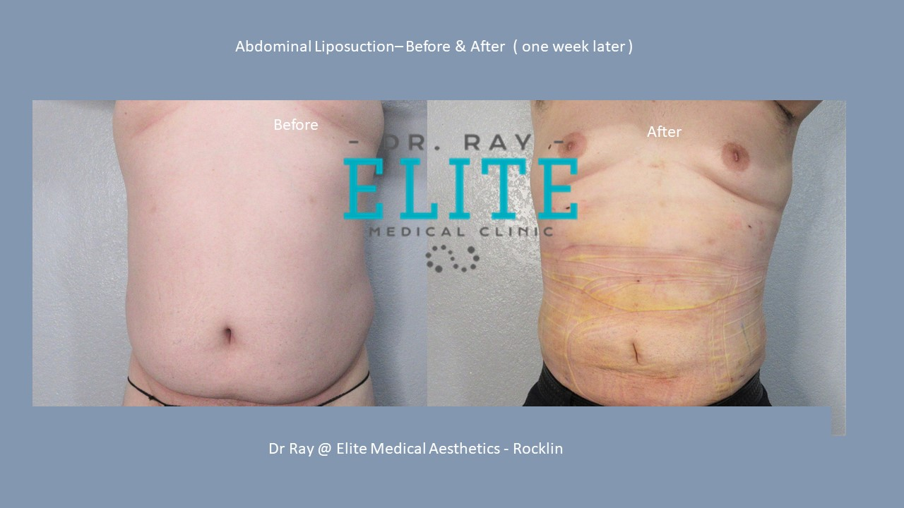 Abdominal Liposuction Before & after front view T H