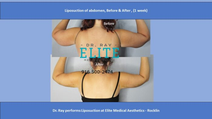 Liposuction of arms Before & after Dr Ray Elite MEdical Sacramento