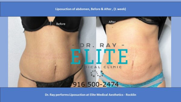 Best Liposuction Abdomen Before & After Dr Ray ELite MEdecal Rocklin F S