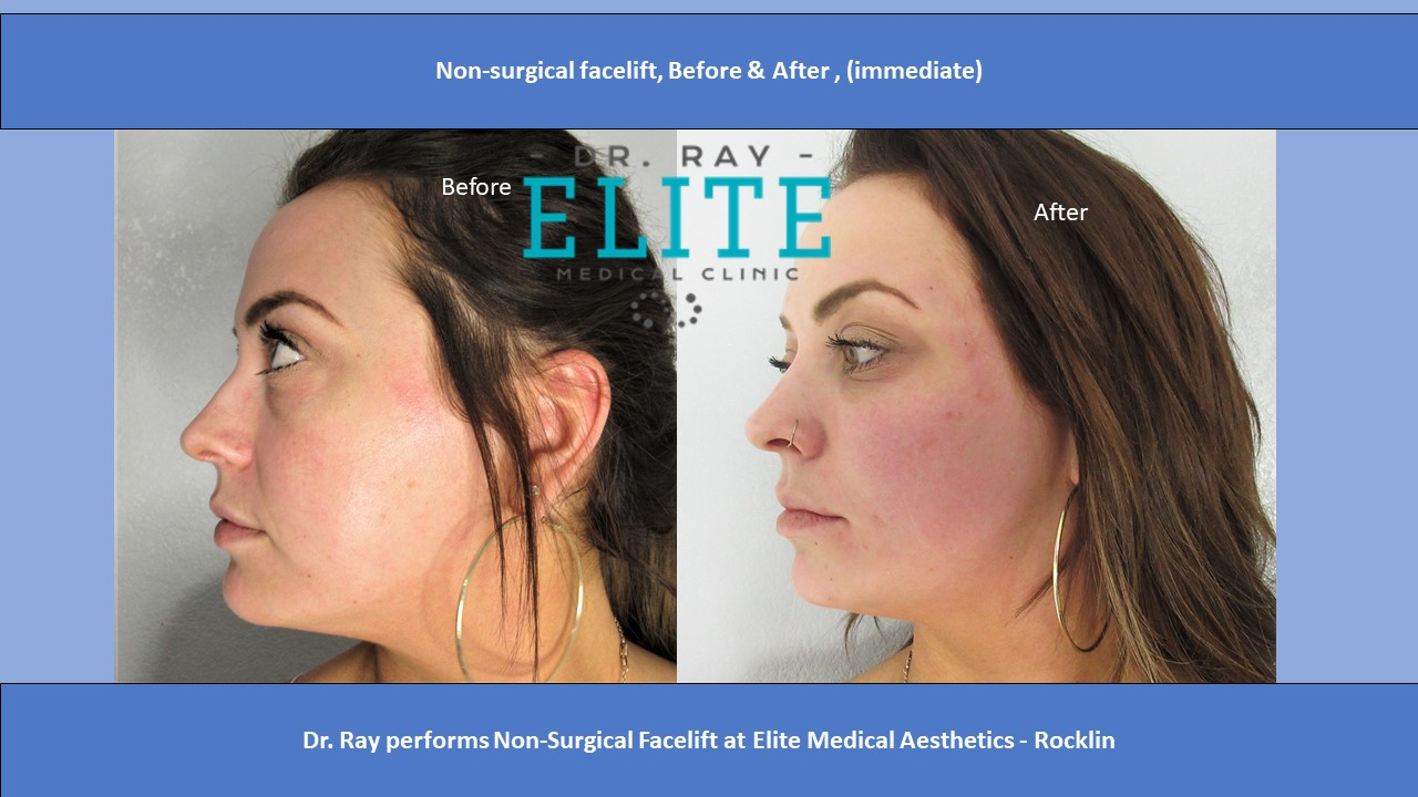 Non-surgical facelift Bellafill After side view Elite Medical Dr Ray Rocklin